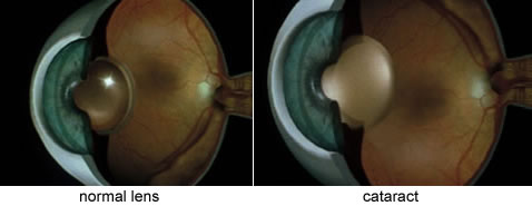 view of normal and cataract lens